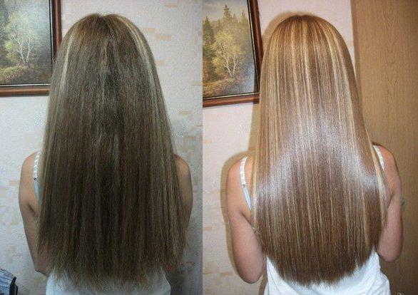 Врастание волос после эпиляции народные средства